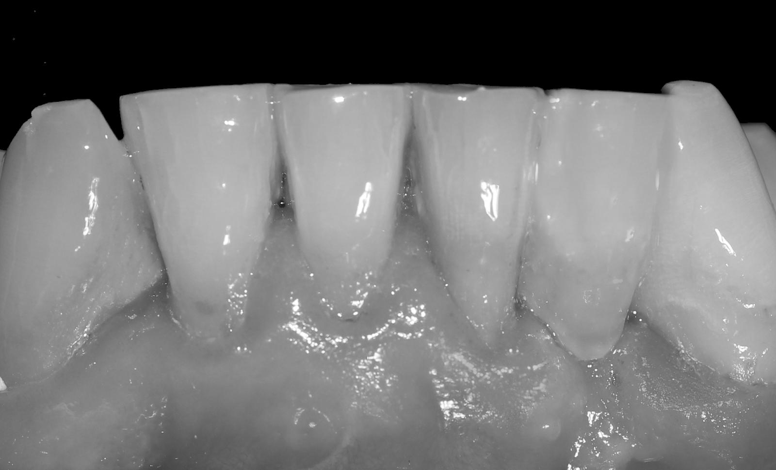 M 225 Ster En Odontolog 237 A Restauradora Y Endodoncia Puente De