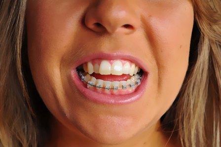 Belinda S Sarpe Sarme Jaw Surgery Photo With Bottom Braces On