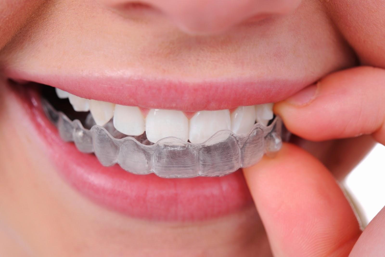 http://dentist-india-madurai.com/treatments-myofunctional-appliances.html