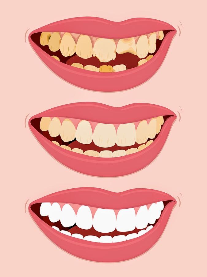 http://www.bestdentistbangalore.com/restorative-dentistry/