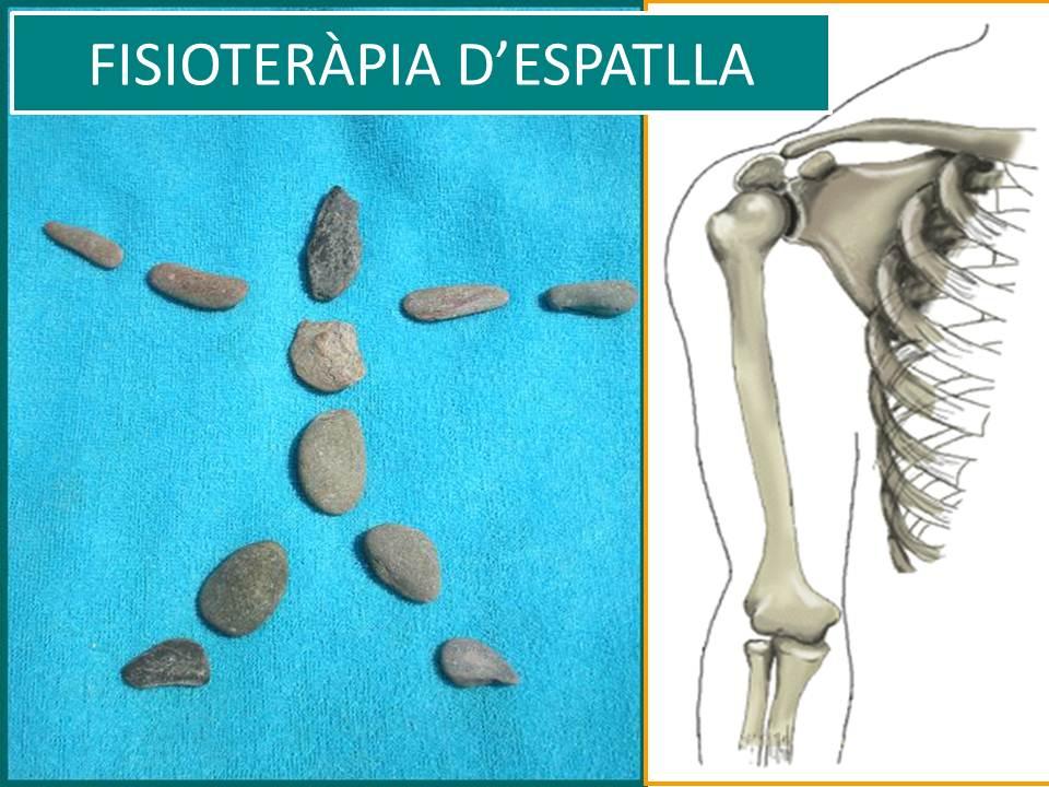FISIOTERÀPIA D'ESPATLLA