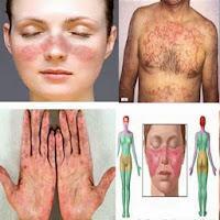 Obat Lupus Herbal