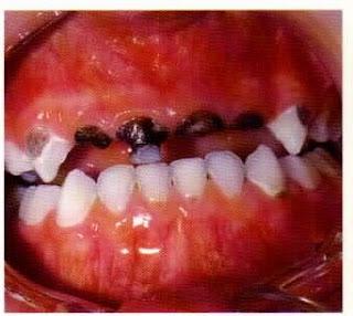 caries gigi