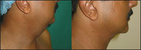 Picture showing liposuction of chin