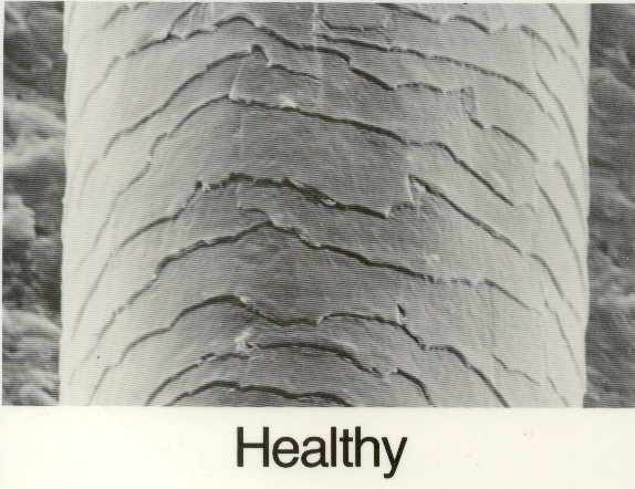 Damaged human hair under microscope - photo#24
