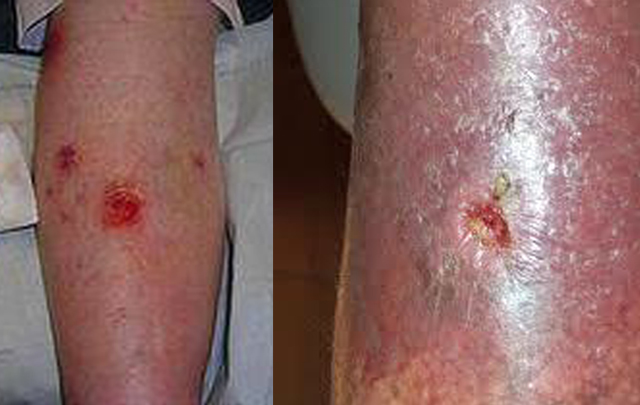 Las inflamaciones agudas a varikoze