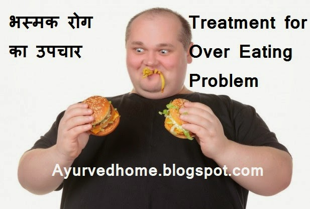 Treatment of Over Eating, Bulimia Diseases , भस्मक रोग का उपचार