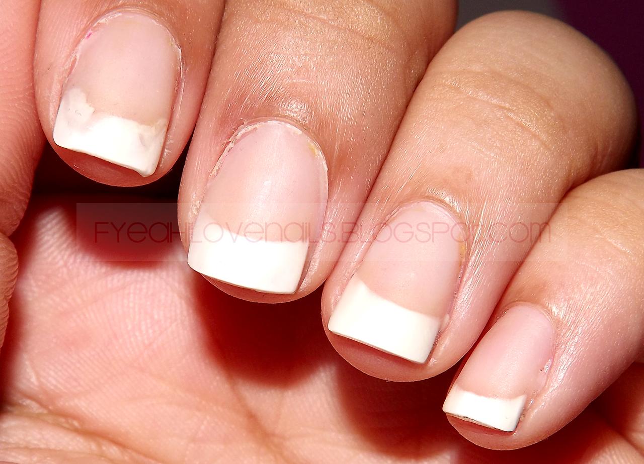 fyeahilovenails: Personal: Acrylic Nails