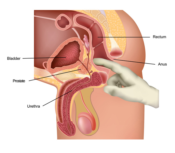 Простата у мужчин массаж для удовольствия