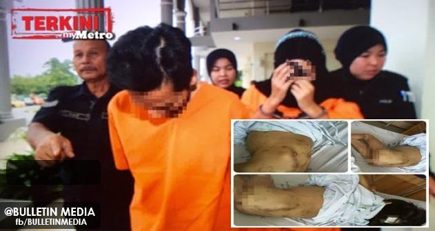 Padah! Pasangan Suami Isteri Dera Anak Perempuan 5 Tahun Ditahan Reman 4 Hari