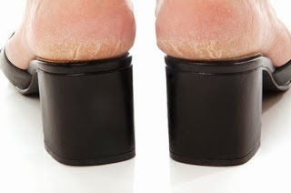 vitamin shaklee untuk merawat tumi kaki merekah