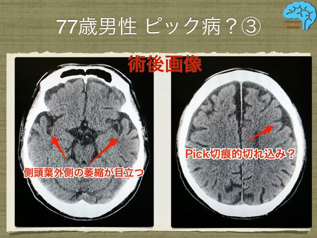 慢性硬膜下血腫術後画像
