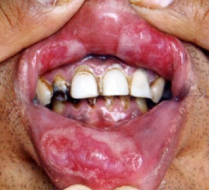 Sifilis Mulut