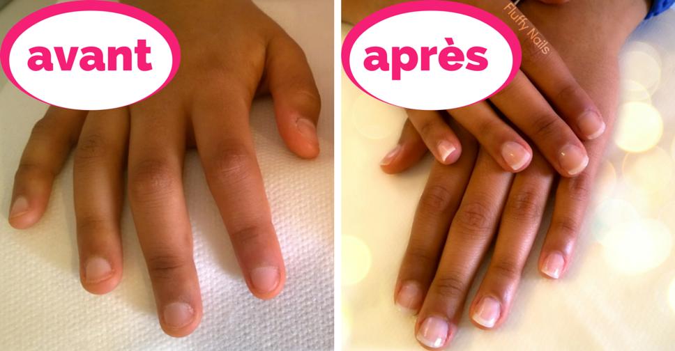 Ongles en gel naturels AVANT,APRES (sur ongles rongés) sur Wassila / Gel  nails natural look on bitten nails on Wassila