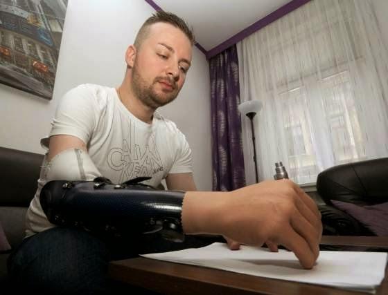hombre-amputar-mano-prótesis-biónicas