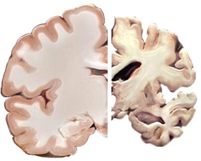 Sammenligning af sund og Alzheimers hjerne