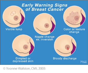 Are breast nodules cancerous