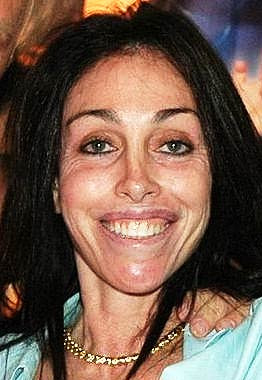Heidi fleiss before and after