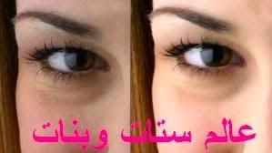 كيفية التخلص من الخطوط الرفيعة تحت العين و في الجبهة بالوجه حول الفم