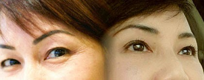 Eyebrow Lift & Lower Blepharoplasty