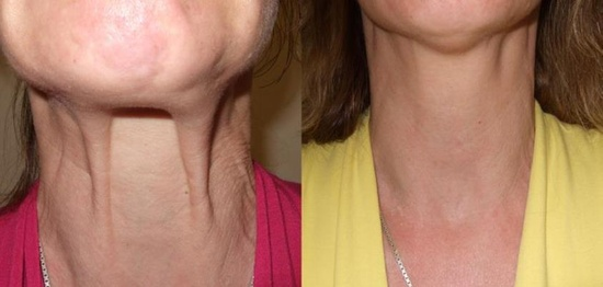 how to fix sagging jowls without surgery