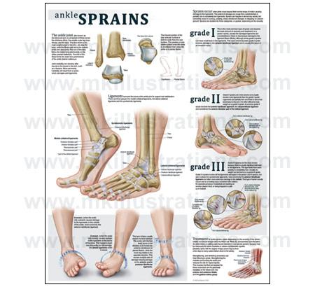 ankle sprain Recently sprained your ankle drayer physical therapy can help with the treatment and care of your ankle sprain so you can get back on your feet.