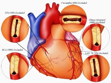 angina paper research Read this essay on chronic angina case study come browse our large digital warehouse of free sample essays get the knowledge you need in order to pass your classes.