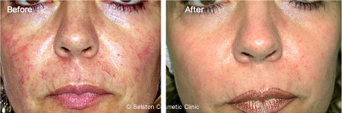 spider veins on face alcohol