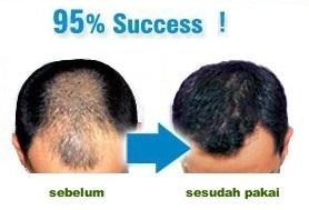 Obat penumbuh rambut alami yang ampuh dan cepat