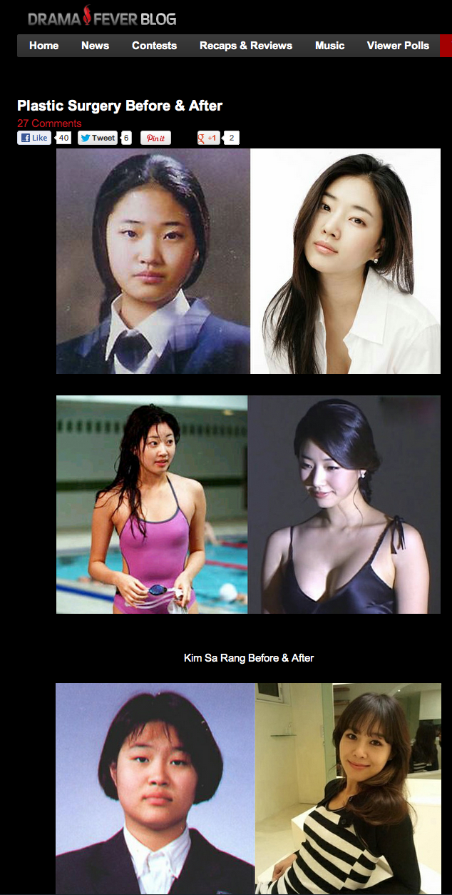 Kpop stars plastic surgery before and after
