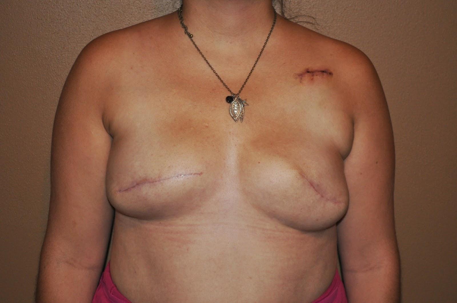 tissue expansion, breast cancer, breast cancer survivor, survivor, reconstruction, plastic surgery, scars