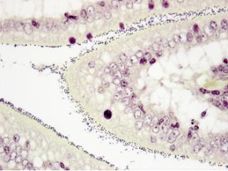 Hình 2: Enterococcus hirae (chấm đen) dính chặt vào rìa bàn chải ruột non của lợn con 3 đến 4 ngày tuổi; tiêu bản tổ chức nhuộm Gram (X400, cliché LDA 22)