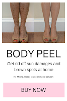 TCA BODY PEEL FOR HOME USE