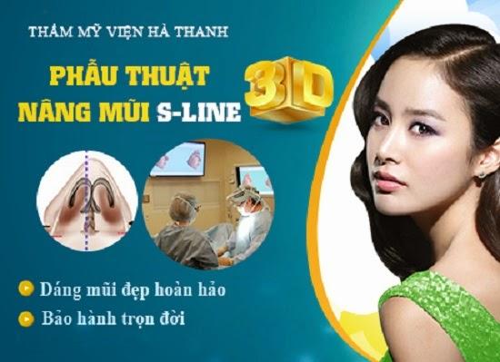 Nâng mũi S line 3D tại thẩm mỹ viện Hà Thanh