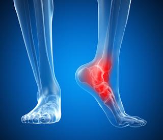 7 tratamentos das entorses de tornozelo