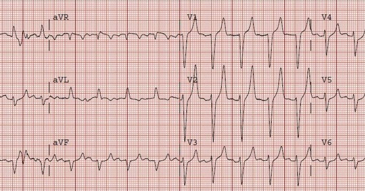 Dr. Smithu0027s ECG Blog HyperKalemia with Cardiac Arrest. Peaked T waves Hyperacute (STEMI) vs. Early Repolarizaton vs. Hyperkalemia  sc 1 st  Dr. Smithu0027s ECG Blog - Blogspot : tented t waves - memphite.com