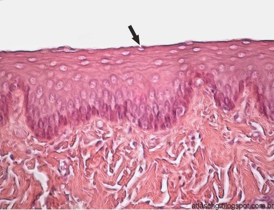 Tecido epitelial de revestimento estratificado pavimentoso não-queratinizado