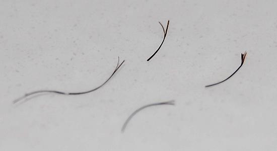 La soude pour les cheveux de la chute
