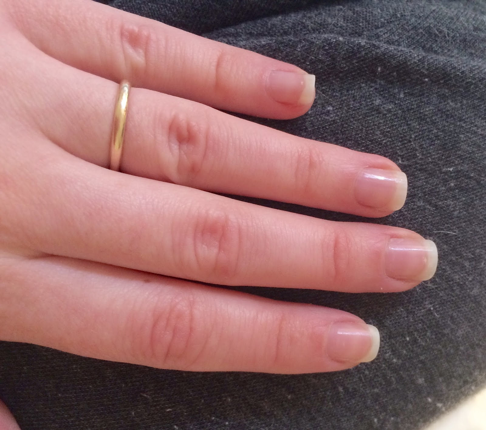 a picture of Nails after OPI Nail Envy Nail Strengthener