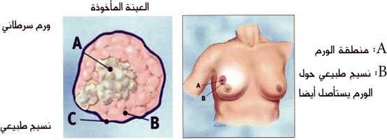 الكشف المبكر لسرطان الثدي وعلاجه