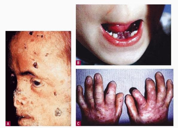 the vampires disease or porphyria which is its scientific term is a ...