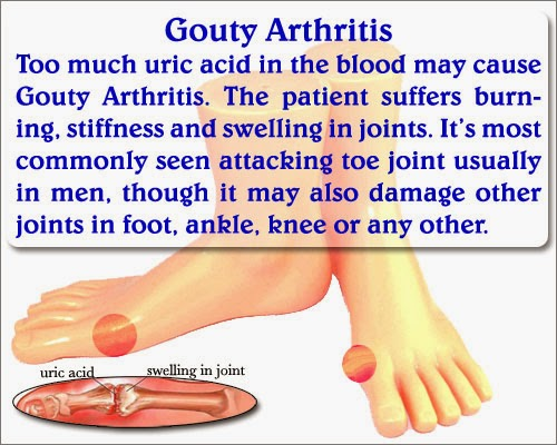topical relief for gout pain reduce uric acid fast what causes gout toe