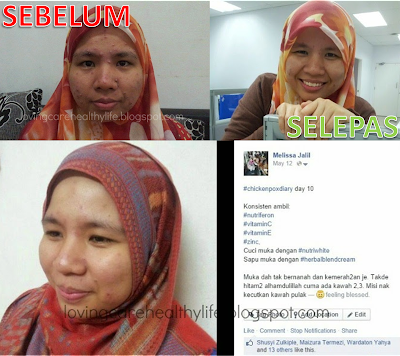 TESTIMONI SET CHICKEN POX SHAKLEE