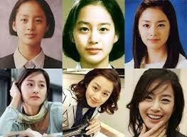 Korean Actresses Plastic Surgery