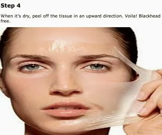 Simple Steps To Naturally Get Rid Of Blackheads