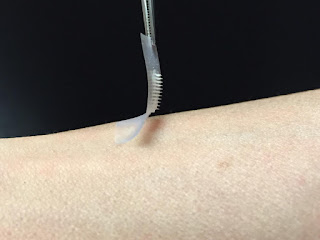 Smart Patch Could Replace Painful Insulin Injections