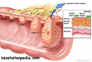 Penyebab dan gejala kanker usus