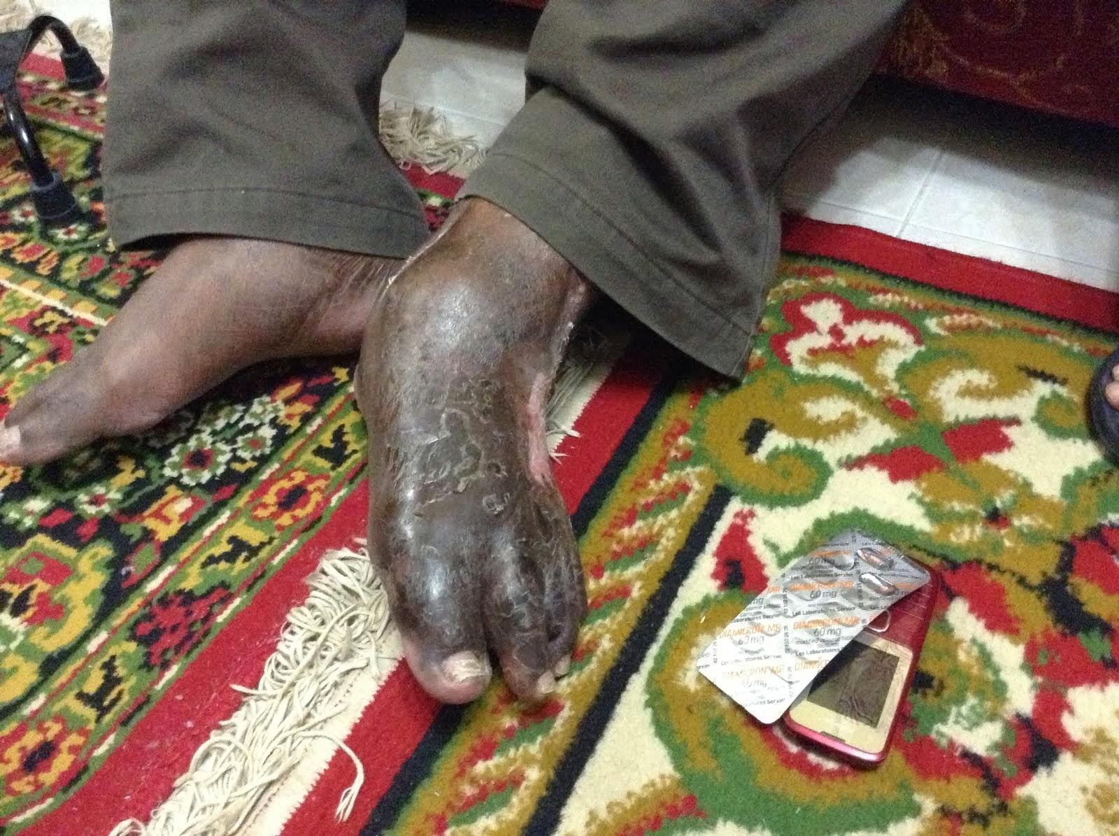 Diabetis - Bacaan 'monitoring system' menurun KELEBIHAN JANAMA MALAYSIA