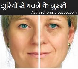 झुरियों से बचने के आयुर्वेदिक व अचूक घरेलु नुस्खे , home remedies for wrinkles in hindi