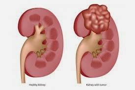 obat penyakit radang ginjal alami
